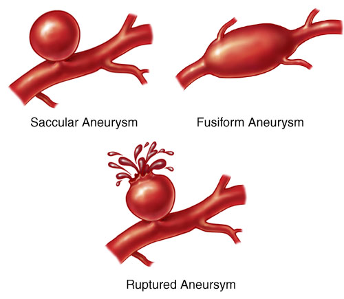 Different forms of aneurysms.